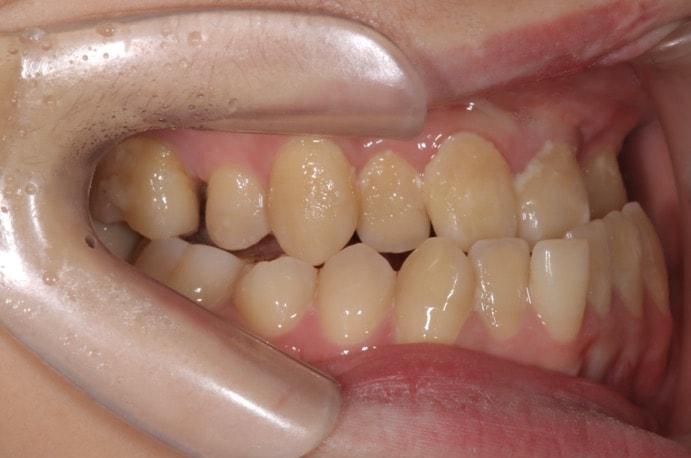 下顎前突(受け口)の口の中