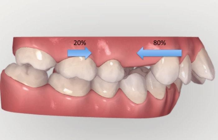奥歯が20%移動し前歯が80%移動する