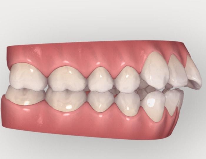 出っ歯を治療する前