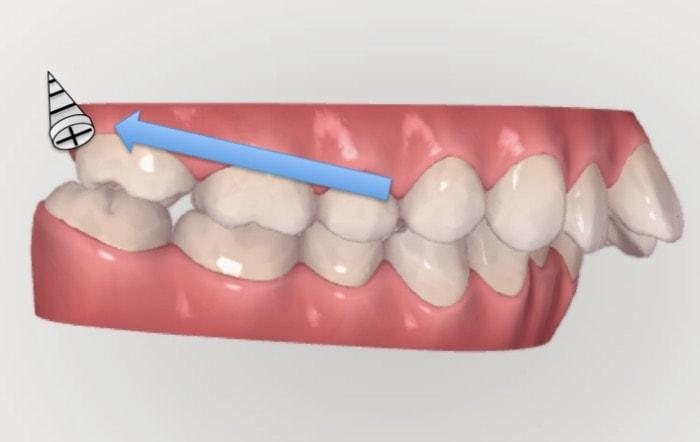 アンカースクリューを奥歯に使用する