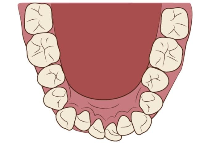 歯にガタガタがあり矯正が必要な口の中