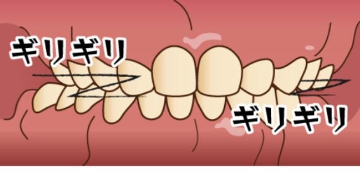 歯ぎしりをしている歯