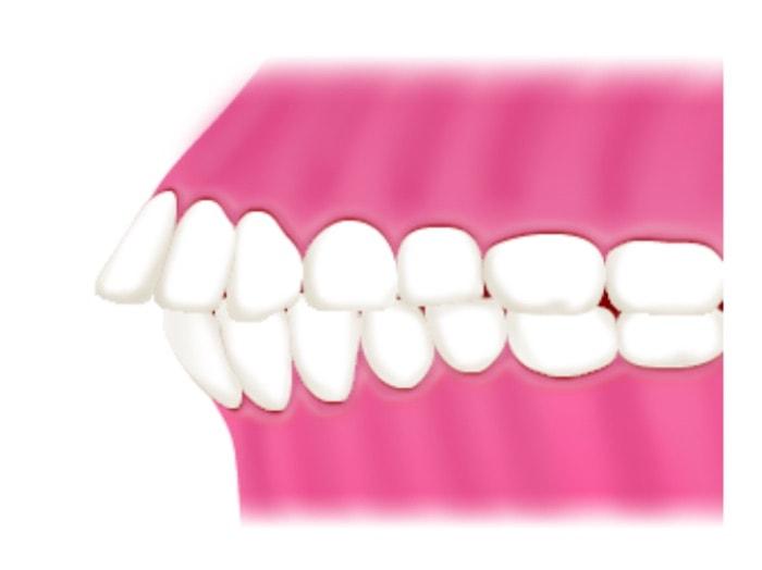 出っ歯の図