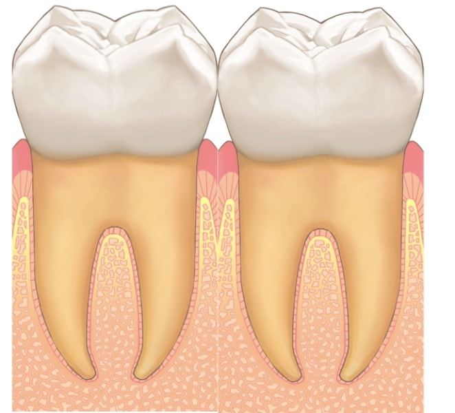 歯と歯が並んでおり歯の間に隙間がある