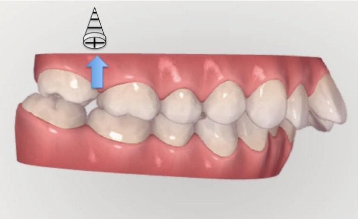 アンカースクリューを奥歯を圧下させる目的で使用