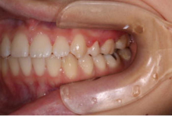 治療後の左の側方面観