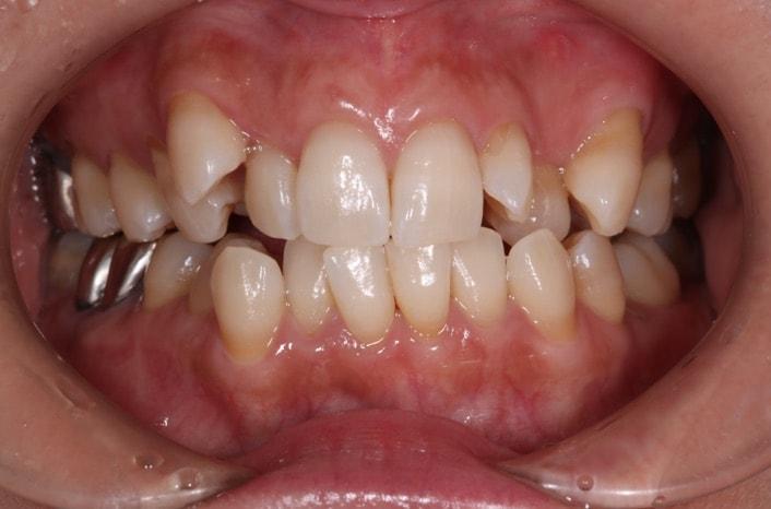 叢生(八重歯)