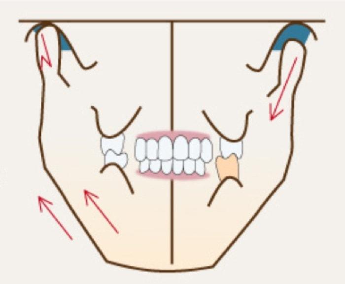 顎関節がずれて見せかけの噛み合わせを作っている