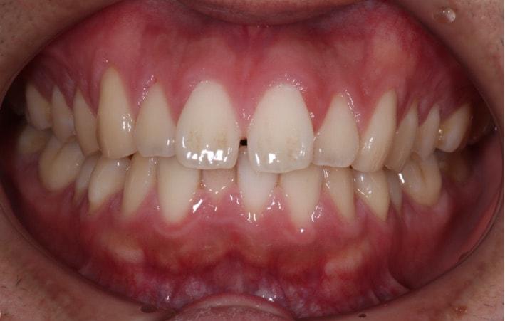 歯の真ん中に隙間が空いている正中離開