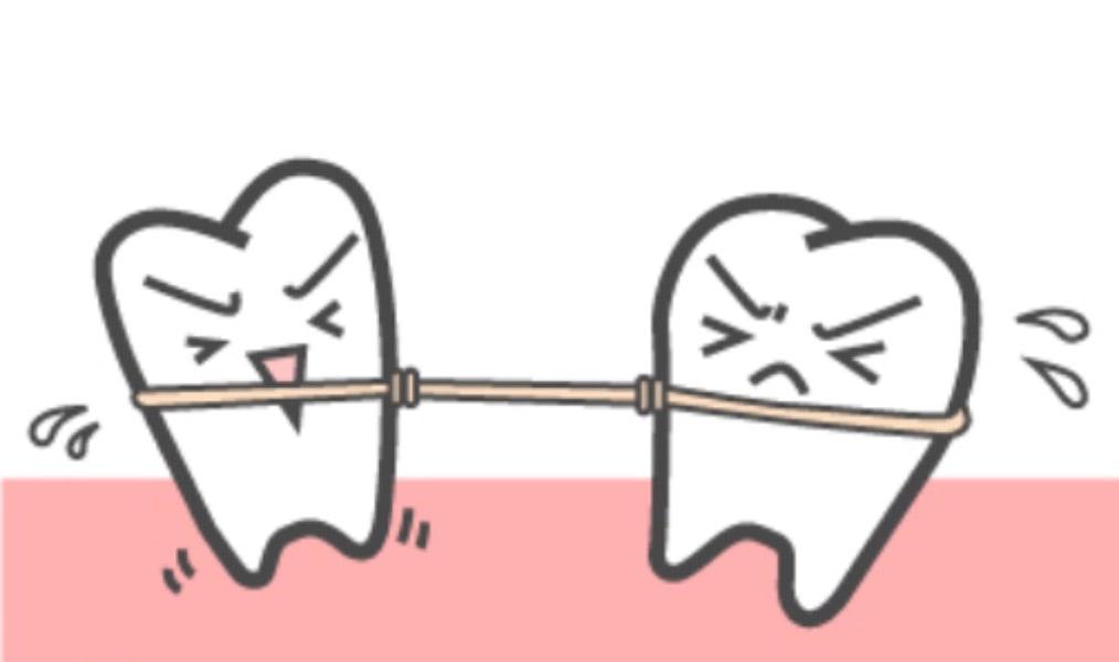 歯が動いて元に戻っている