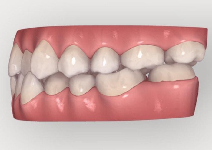 受け口を治すために下の奥歯を後ろに動かしている