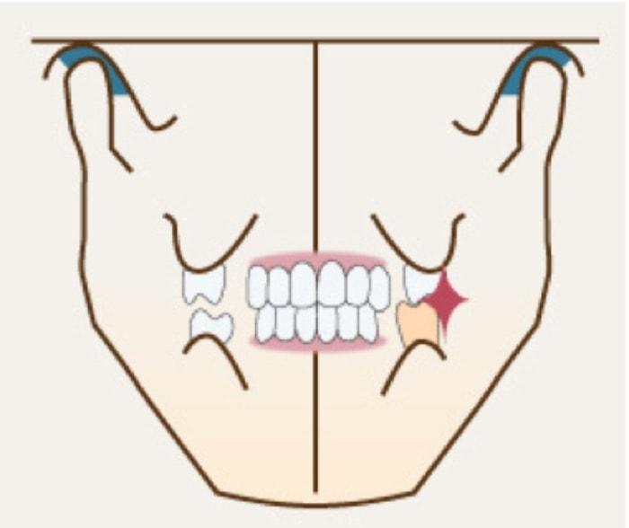 顎関節は正しいが噛み合わせが悪い
