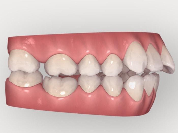 出っ歯を治すために奥歯を後ろに動かしている