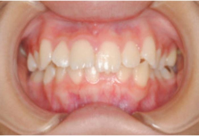 出っ歯の正面観