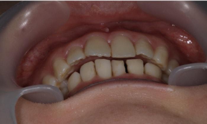 顎の位置がずれて前歯が噛んでいない