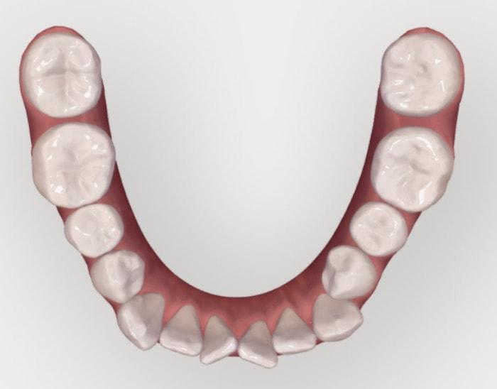 下の奥歯を後ろに動かしている咬合面観