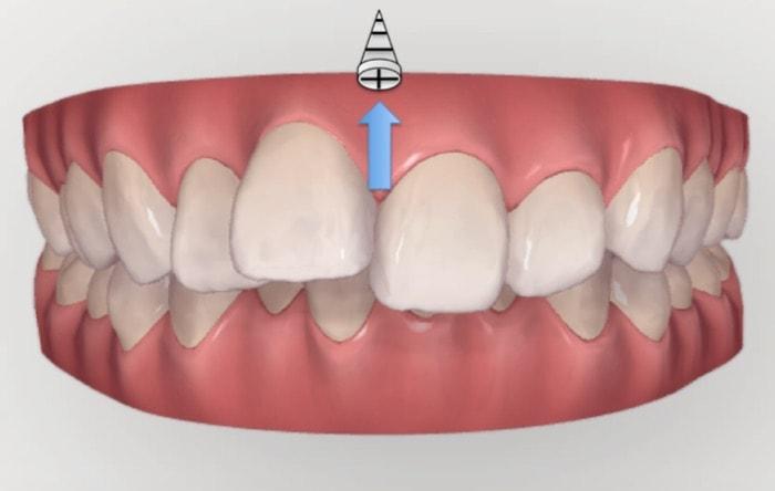 アンカースクリューを前歯を圧下させる目的で使用