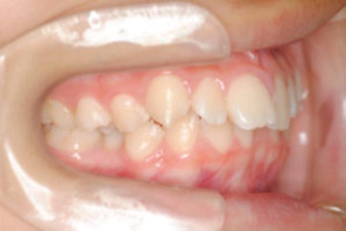 出っ歯の側面観