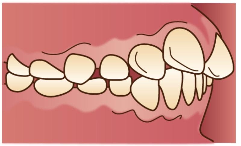 出っ歯を表している口の中