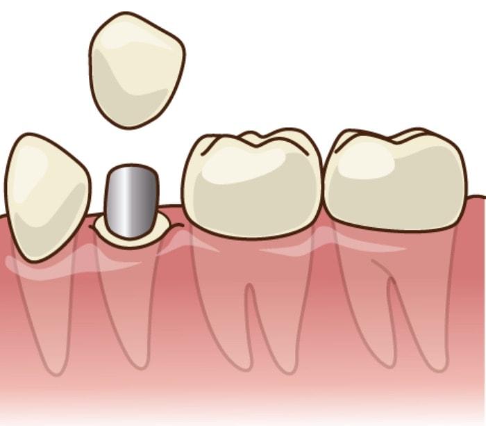 虫歯の治療が終わった後に被せ物を入れようとしている