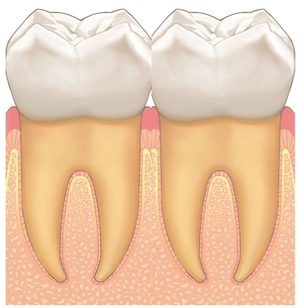 歯の接触面積が増え、歯と歯の間の隙間が埋まっている
