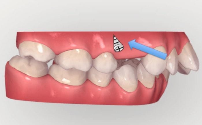 アンカースクリューを使用し前歯を中に入れる