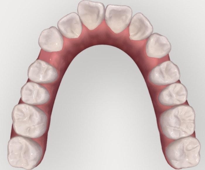 前歯にスペースができてきた咬合面観