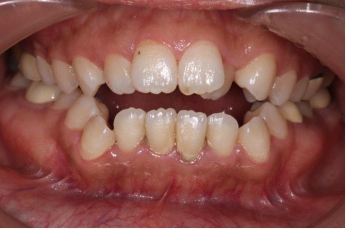 前歯が噛んでいない口の中