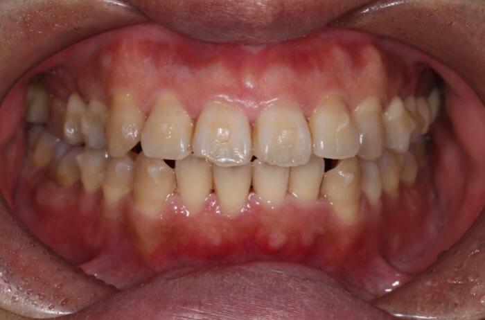 歯についているアタッチメントの周りに着色を綺麗にした状態