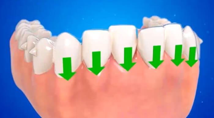 前歯を圧下させ小臼歯を挺出させるアタッチメント