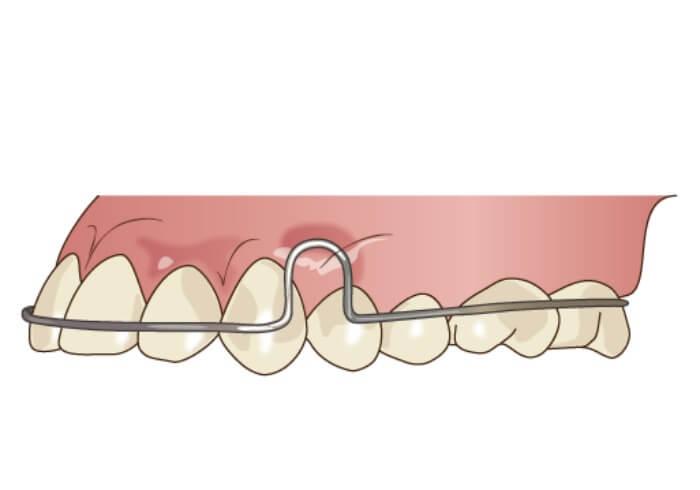 口腔内に入った保定装置