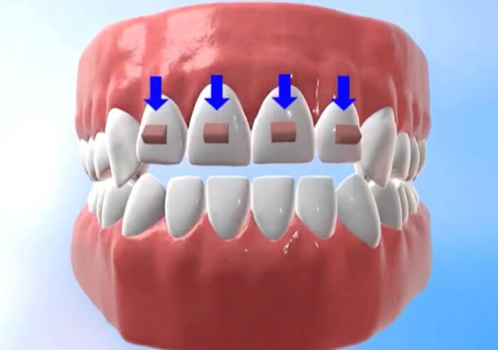 前歯をかませるアタッチメント