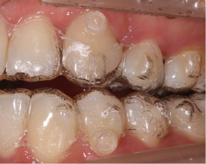 歯とアライナーの間に隙間が空いて浮いている