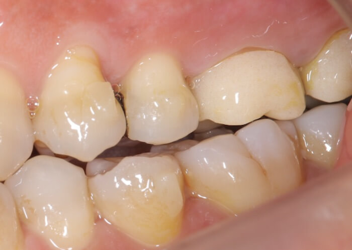 歯についたアタッチメント