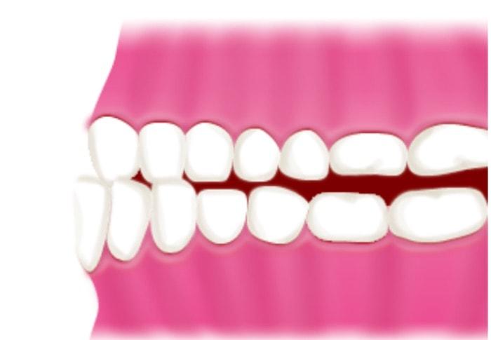 受け口の歯