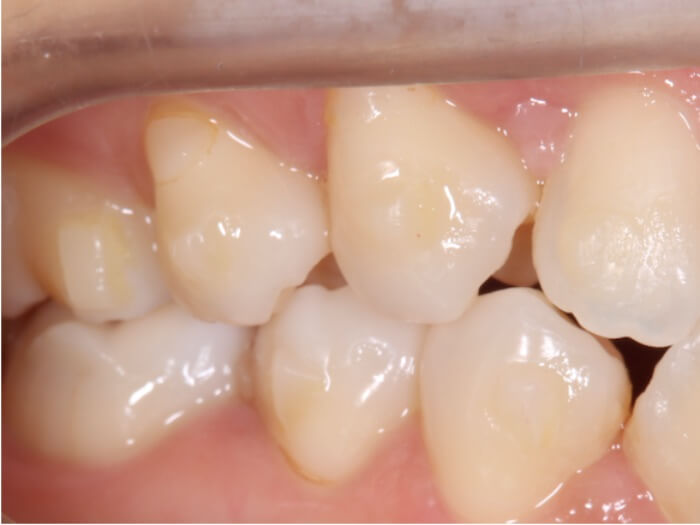 歯についた色が合ったアタッチメント