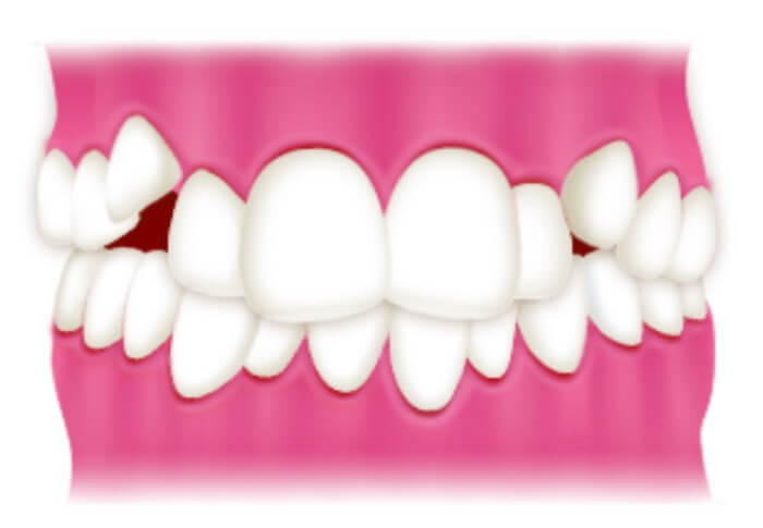 上下の歯がガタガタしている