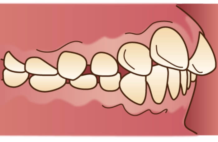 出っ歯の口腔内