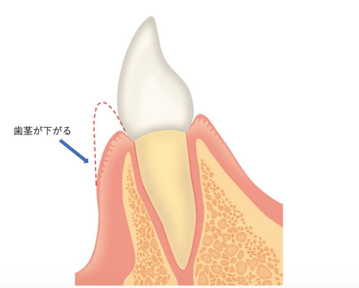 歯茎が腫脹している状態から正常な状態に戻った図