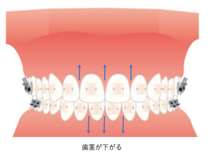 矯正治療で歯肉が下がった状態