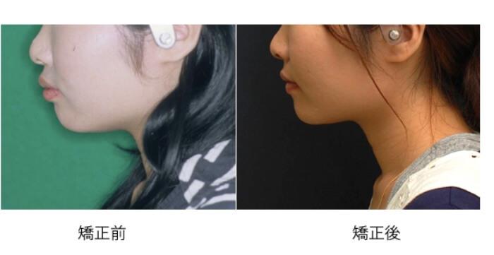 左が矯正前で口元が突出しており、右が出っ歯の人が抜歯をして口元が綺麗になった矯正治療後の横顔