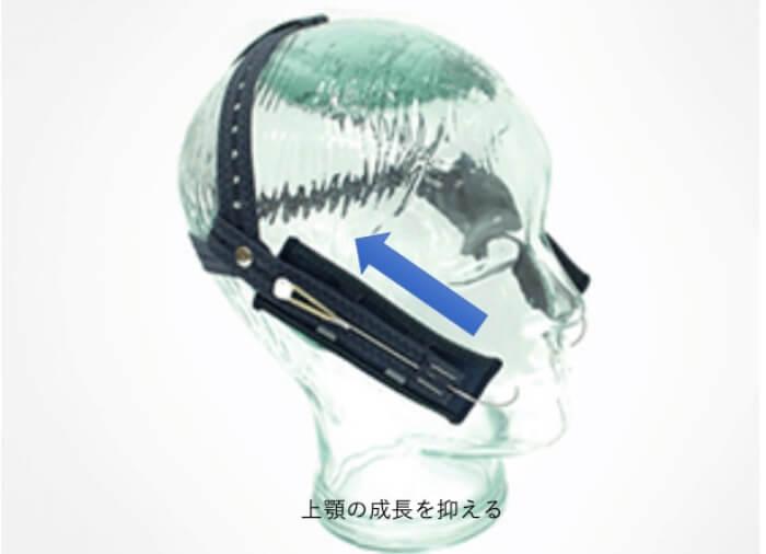 上顎の成長を抑制するヘッドギアという装置