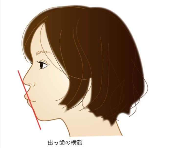 出っ歯の口元にEラインが引かれている女性