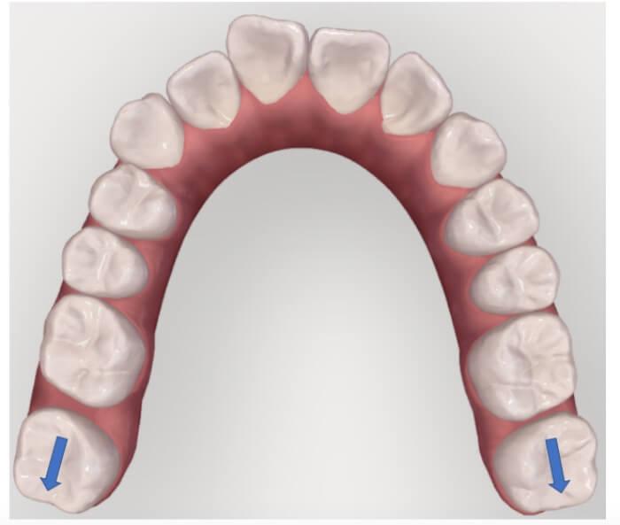 歯を後ろに移動させ隙間を作っている