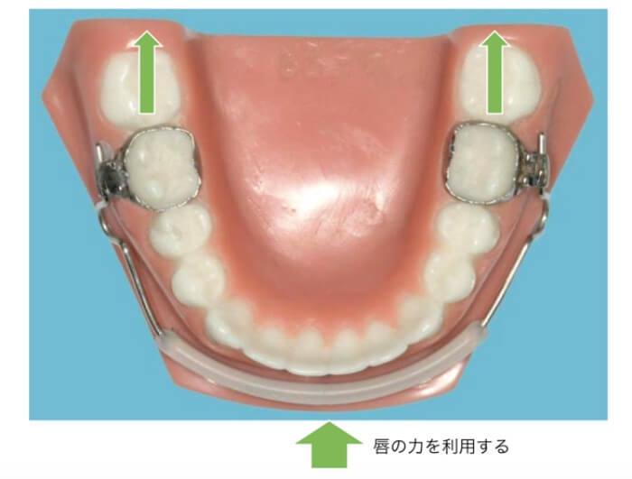 唇の力を利用するリップバンパーという装置