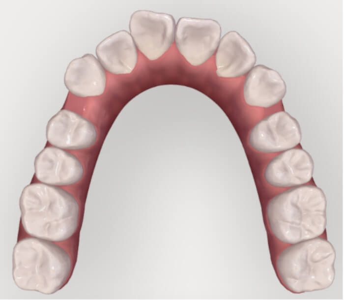 奥歯を順番に後ろに移動させ前歯に隙間を作っている