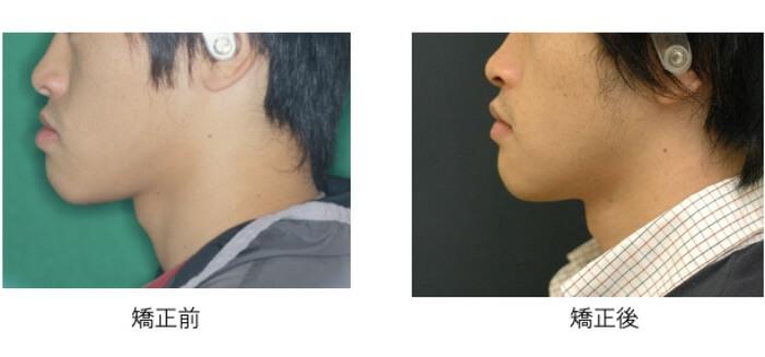 左が矯正前の横顔で右が外科矯正後の綺麗になった横顔