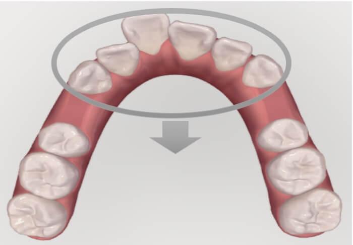 歯を抜いたスペースに前歯を中に入れようとしている