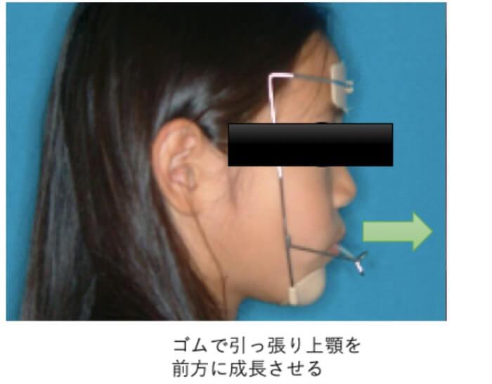 子供の受け口の矯正治療で使用する上顎前方牽引装置