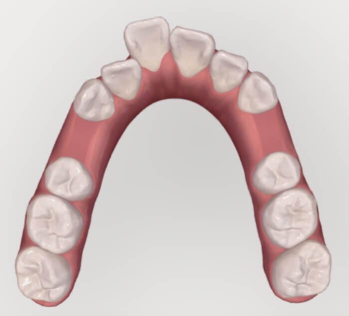 矯正治療で抜歯されている上顎の咬合面観